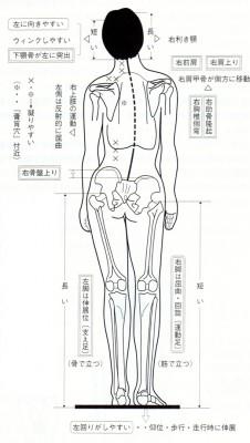 身体の歪み