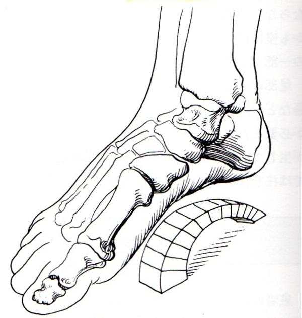 足の縦アーチ