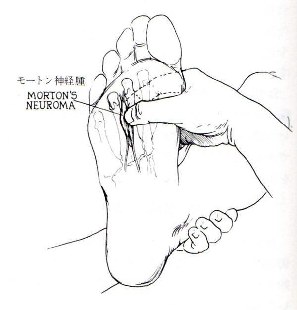 モートン神経腫