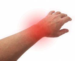 手首の痛みの図