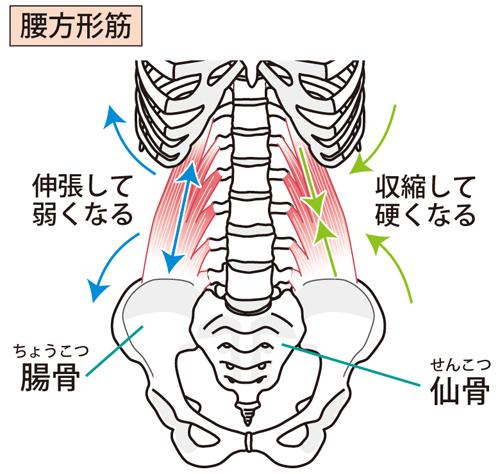 腰方形筋の図