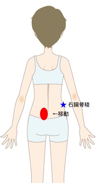 問診で痛む箇所の図