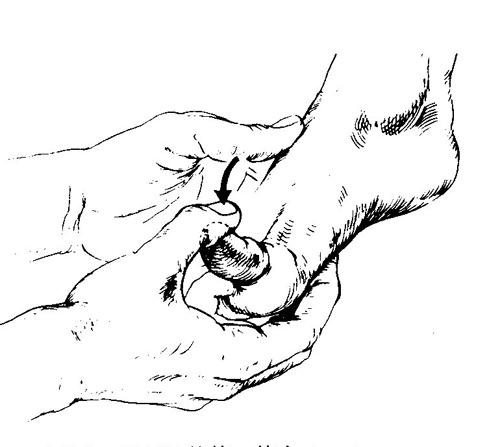 長母趾伸筋テスト