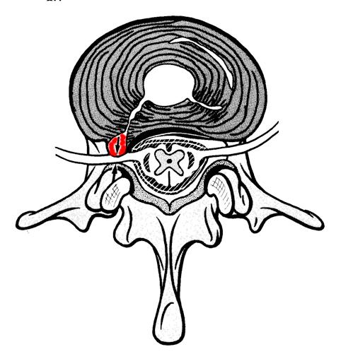 髄核突出の図
