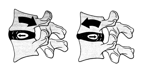 髄核移動の図